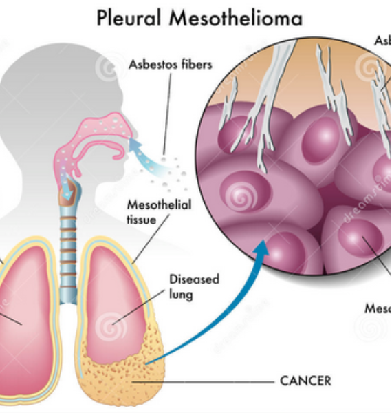 Factors affecting treatment options for Lung Mesothelioma
