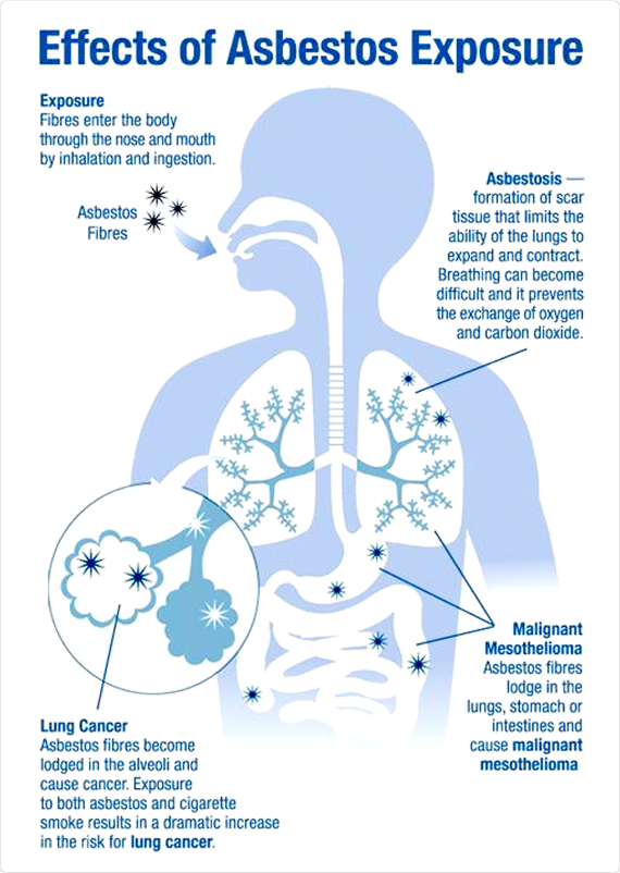 asbestos effects