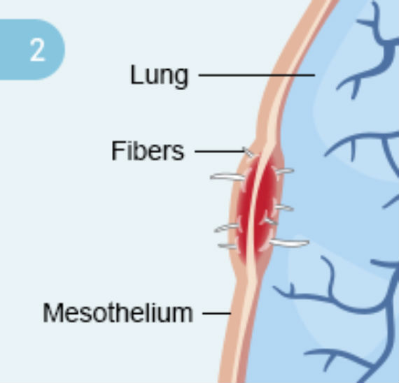 What You Need to Know About Pleural Mesothelioma