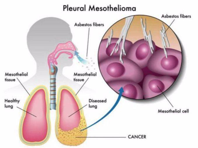 Mesothelioma Treatment Options (2)