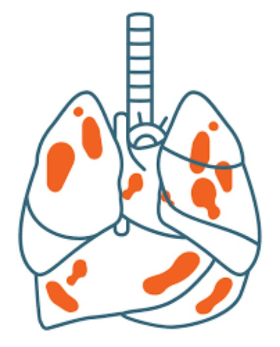 late Mesothelioma Stages