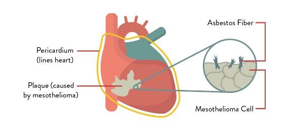 Pericardial Rare mesotheliomas