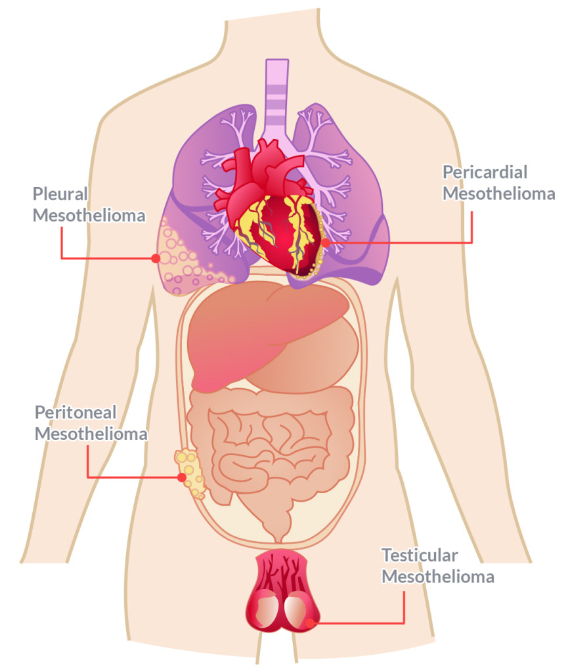 Mesothelioma Symptoms, Causes, Types And Treatment (3)