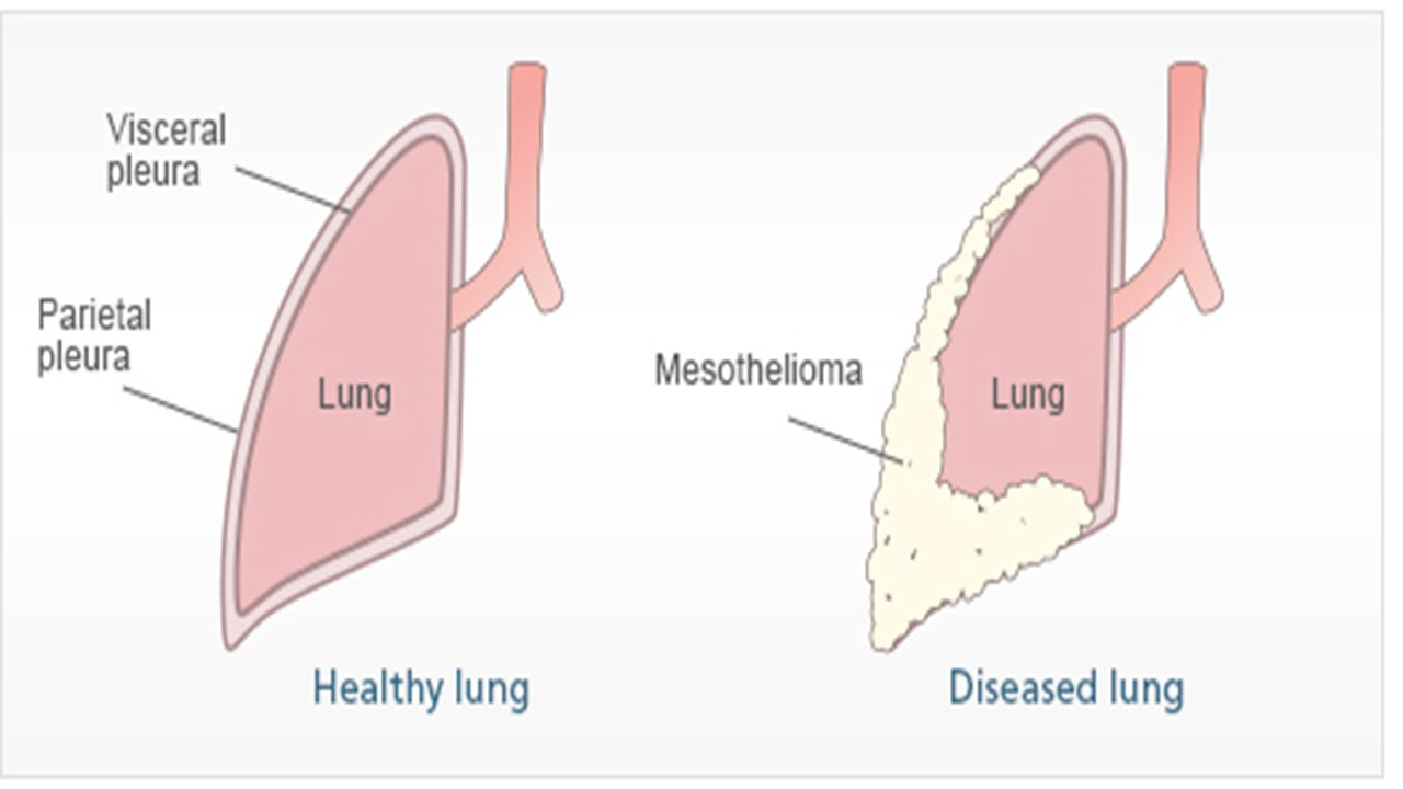 Mesothelioma: Causes, Types And Treatment  MesotheliomaCancer