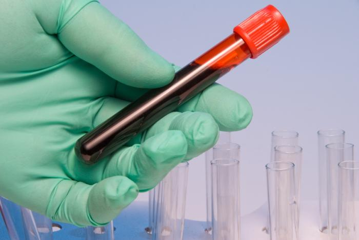 Mesothelioma Blood Tests and Biomarkers