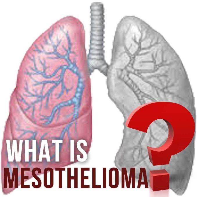Mesothelioma - Overview of Malignant Mesothelioma Cancer (1)