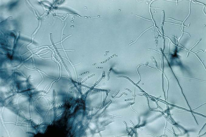 Streptomyces-Treating Mesothelioma with an Antibiotic