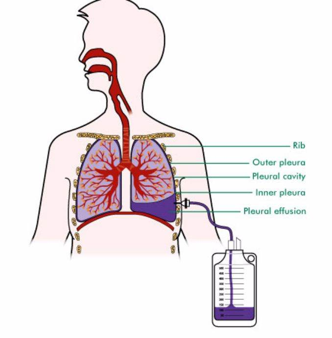 pleural effusion causes diagnosis and treatment - 900×916